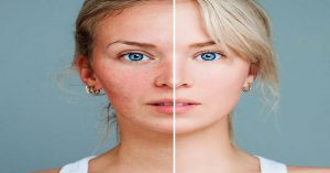 How is Rosacea Different From Acne?
